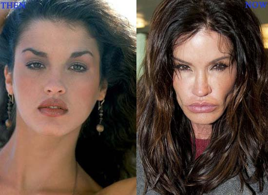 Plastic Surgery Disasters Stchd
